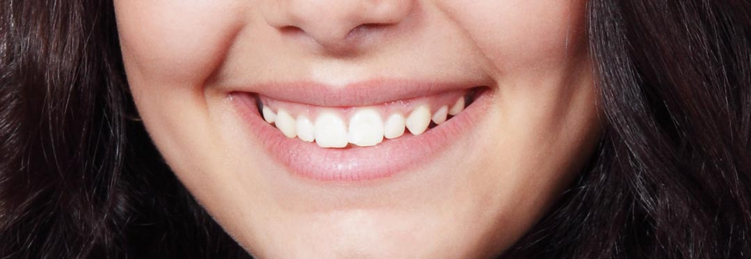 skuteczne wybielanie zębów w gabinecie stomatologicznym