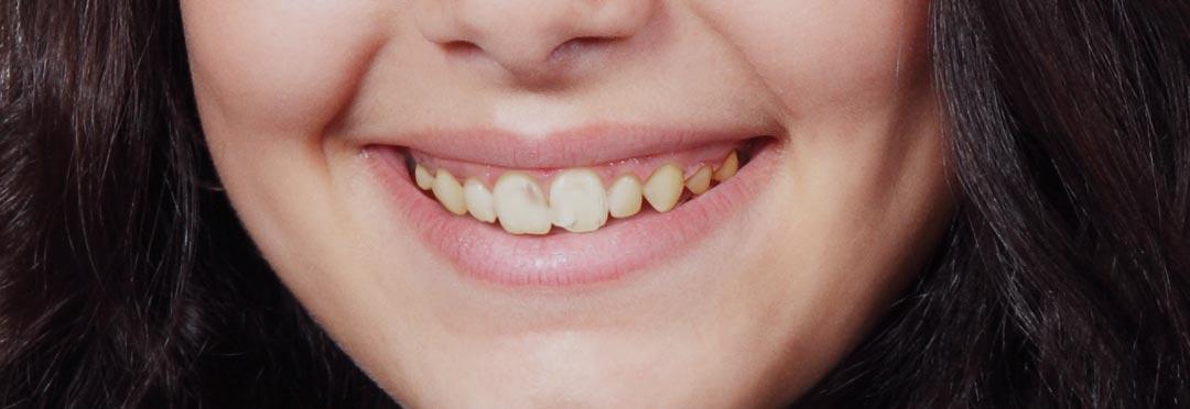 wybielanie zębów lampą beyond w gabinecie dentystycznym