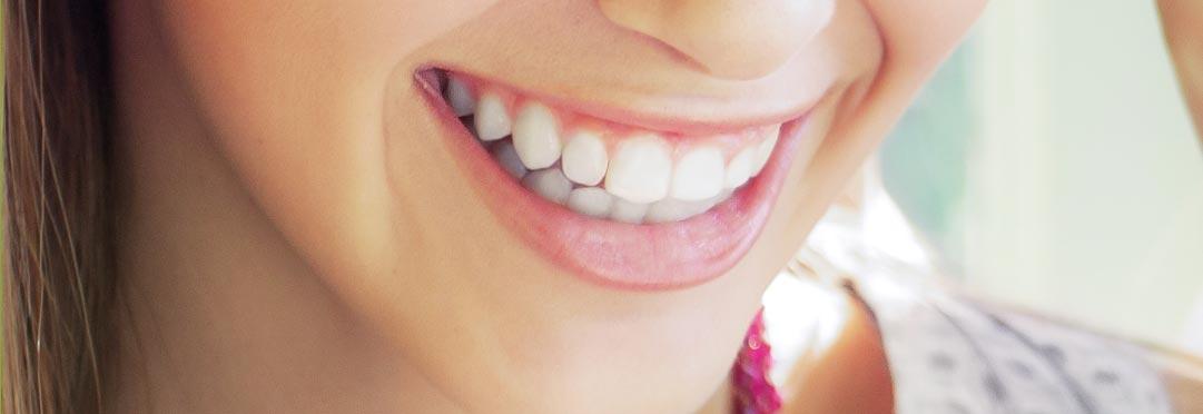 jak wybielić zęby u dentysty